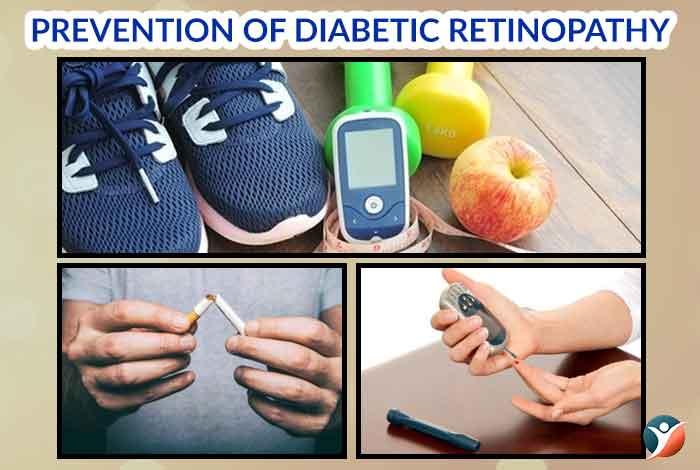 prevention of diabetes retinopathy