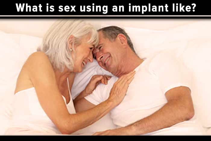 what is sex using an implant like