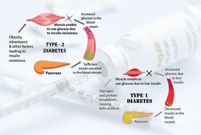 Type I Diabetes Mellitus