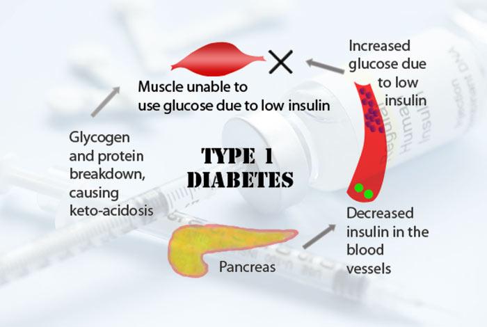 Etiological Classification of Diabetes Mellitus