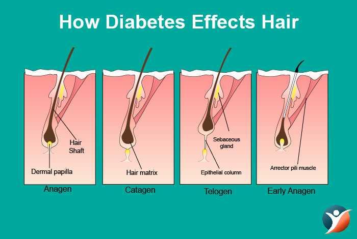 How Diabetes Affects Hair Health