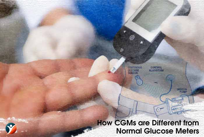 How CGMs are Different from Normal Glucose Meters?