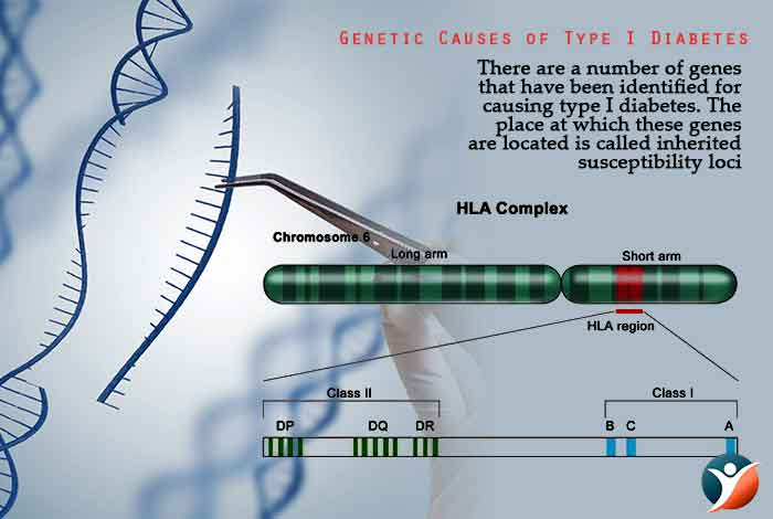 Genetic Causes of Type I Diabetes