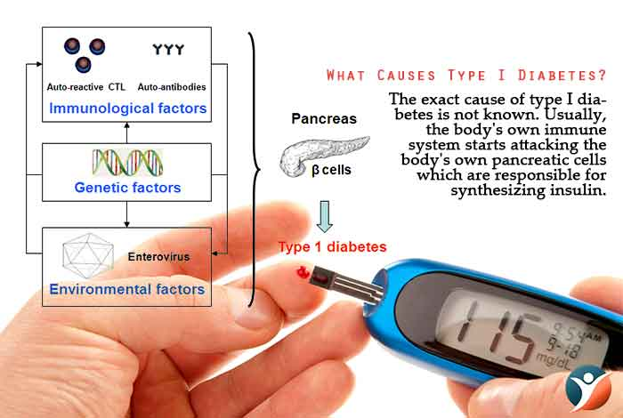 What Causes Type I Diabetes?