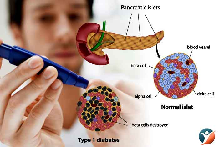 What is Type I Diabetes?
